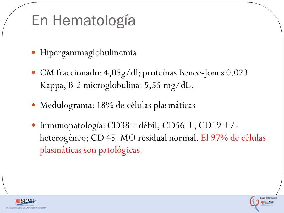 En Hematología Hipergammaglobulinemia