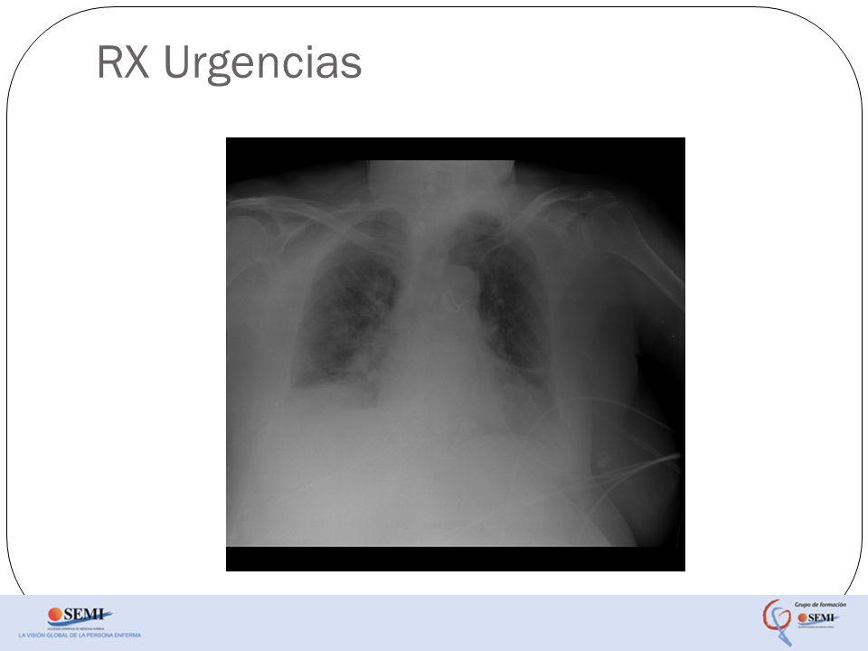 RX Urgencias