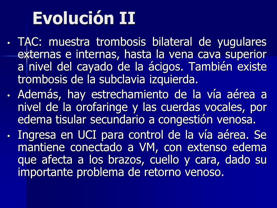 Evolución II