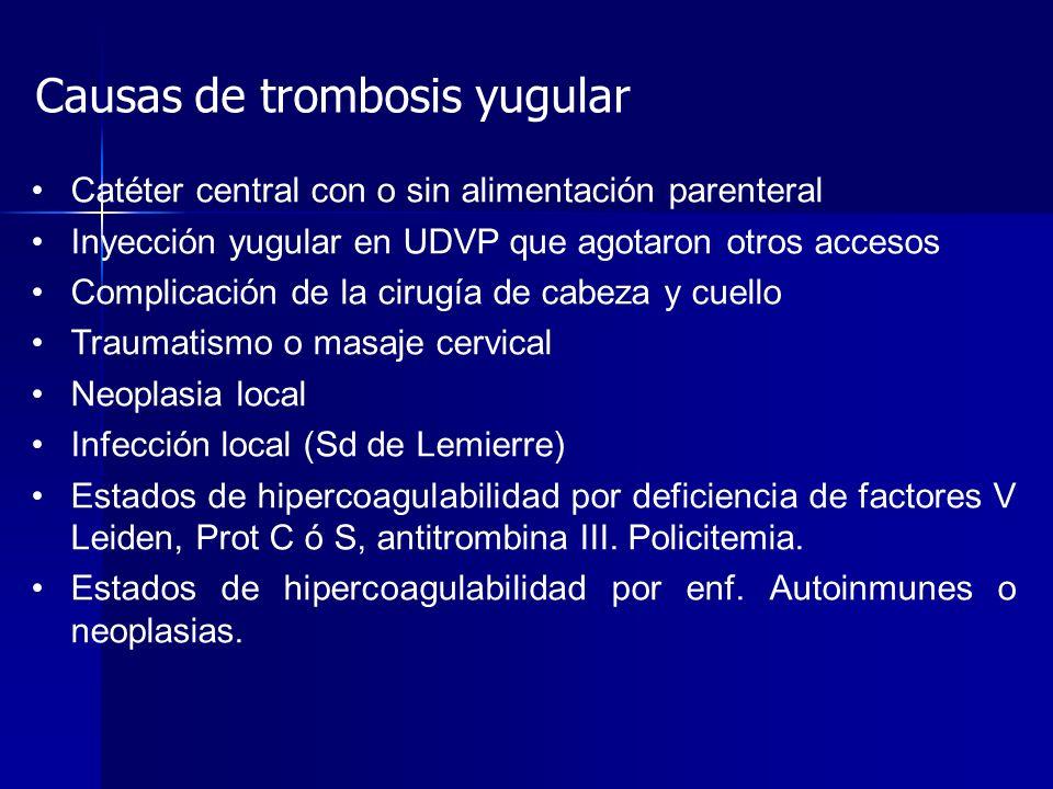 Causas de trombosis yugular