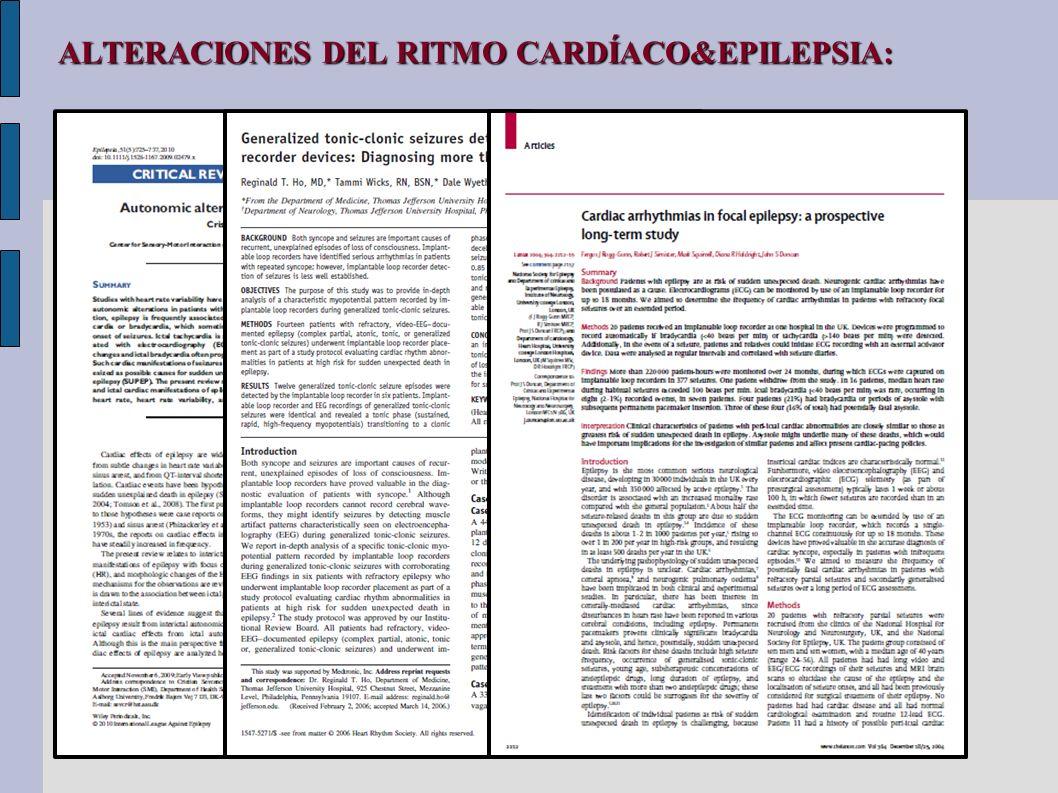 ALTERACIONES DEL RITMO CARDÍACO&EPILEPSIA: