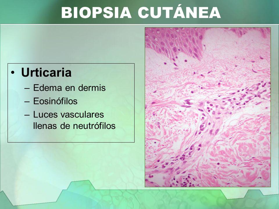 BIOPSIA CUTÁNEA Urticaria Edema en dermis Eosinófilos