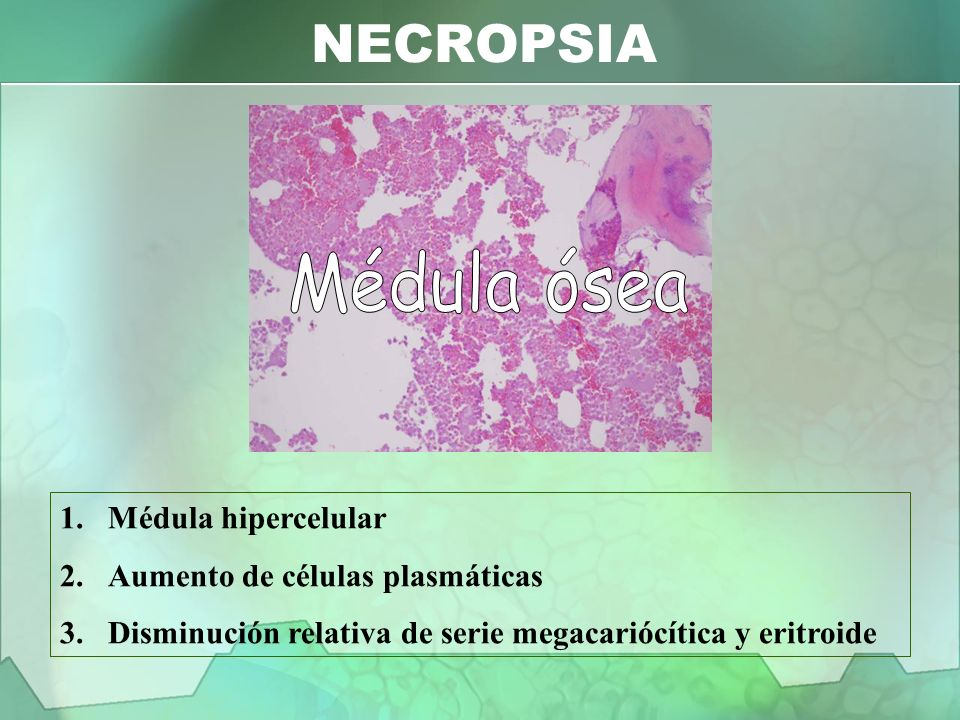NECROPSIA Médula ósea Médula hipercelular