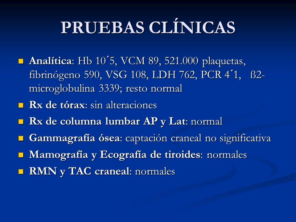 PRUEBAS CLÍNICAS Analítica: Hb 10´5, VCM 89, 521.000 plaquetas, fibrinógeno 590, VSG 108, LDH 762, PCR 4´1, ß2-microglobulina 3339; resto normal.