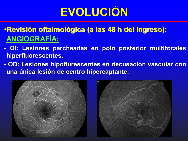 EVOLUCIÓN Revisión oftalmológica (a las 48 h del ingreso):