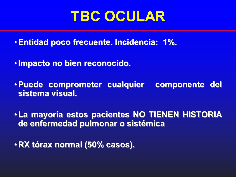 TBC OCULAR Entidad poco frecuente. Incidencia: 1%.