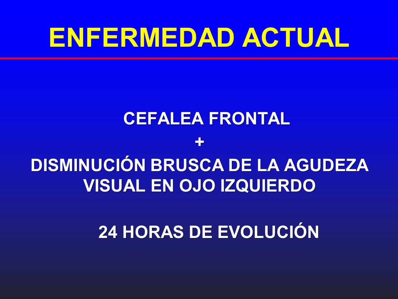 DISMINUCIÓN BRUSCA DE LA AGUDEZA VISUAL EN OJO IZQUIERDO
