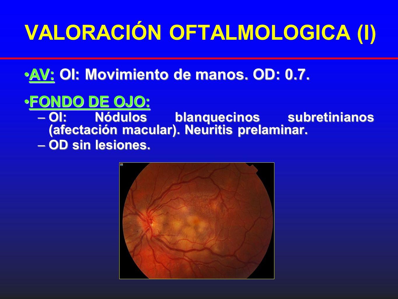 VALORACIÓN OFTALMOLOGICA (I)