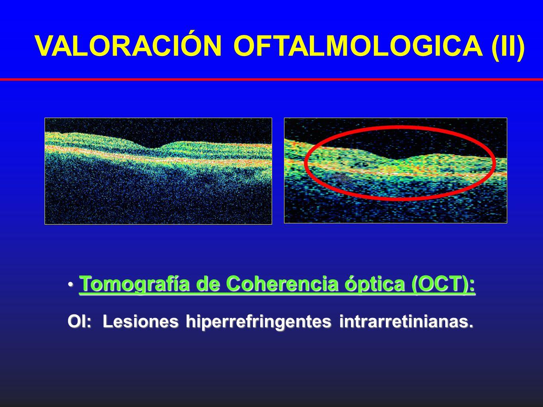 VALORACIÓN OFTALMOLOGICA (II)