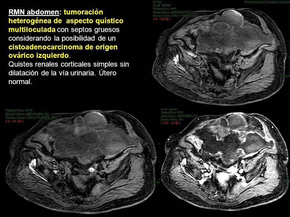 RMN abdomen: tumoración heterogénea de aspecto quístico multiloculada con septos gruesos considerando la posibilidad de un cistoadenocarcinoma de origen ovárico izquierdo.