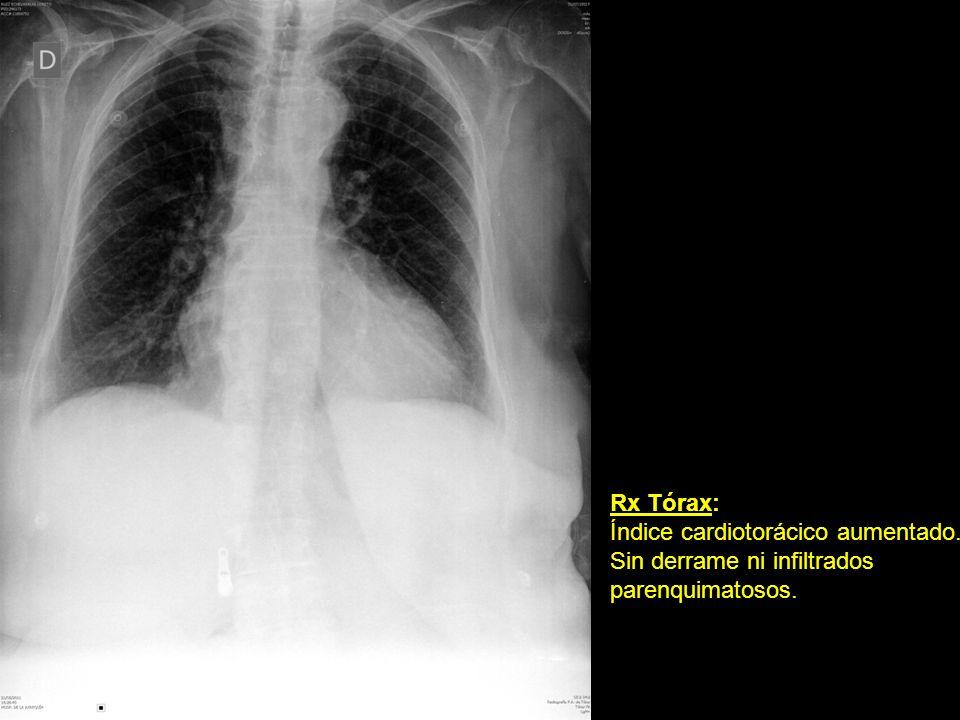 Rx Tórax: Índice cardiotorácico aumentado. Sin derrame ni infiltrados parenquimatosos.
