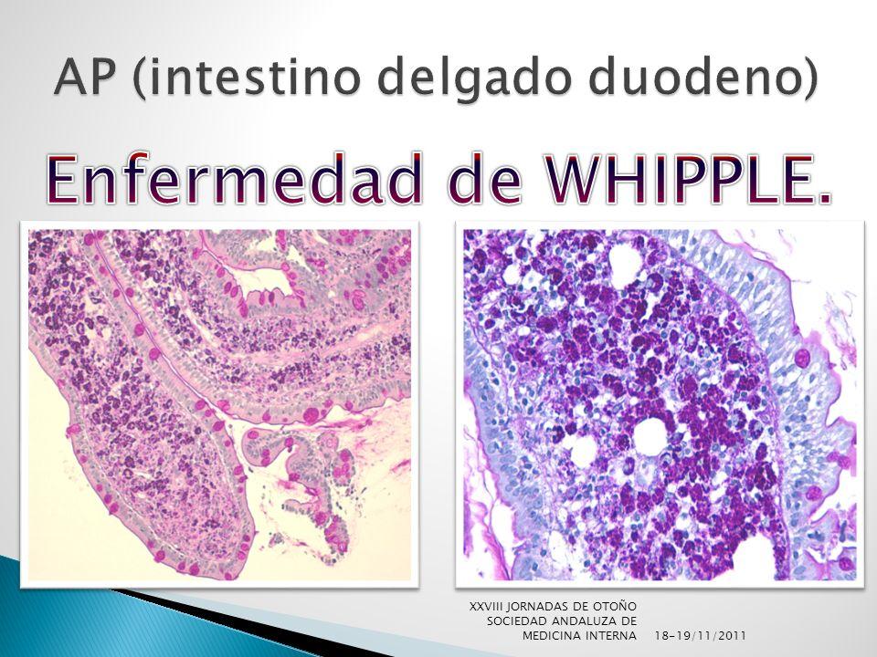 AP (intestino delgado duodeno)