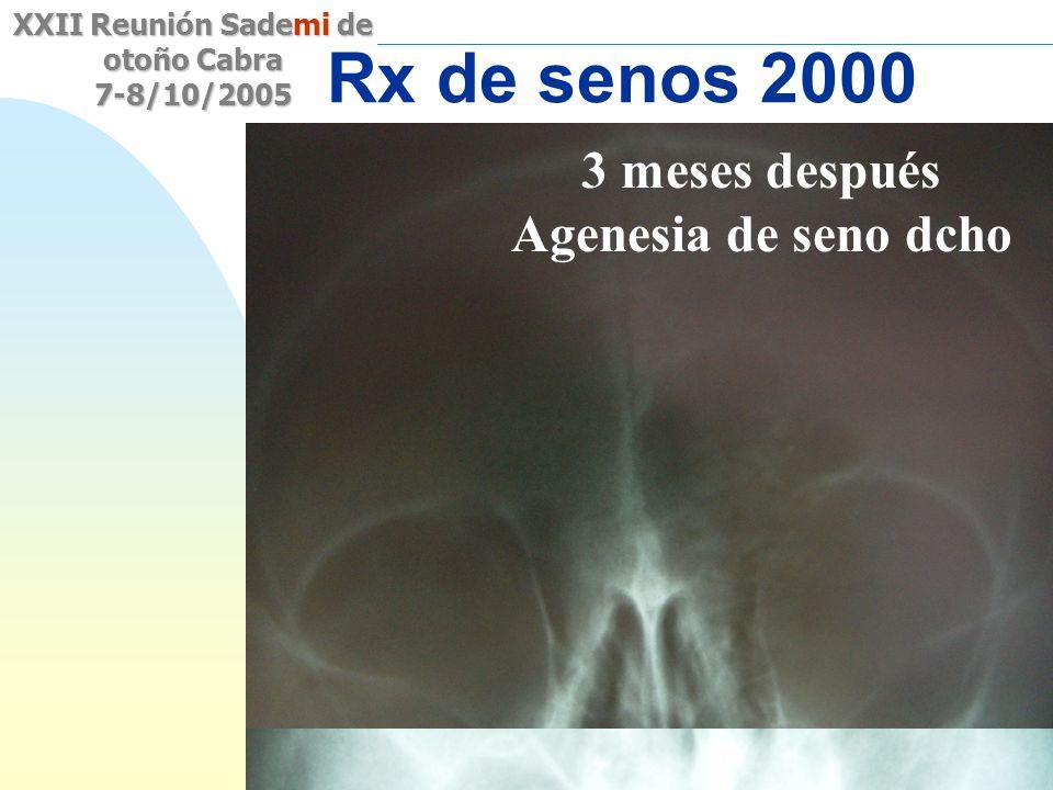 Rx de senos 2000 3 meses después Agenesia de seno dcho Sinusitis