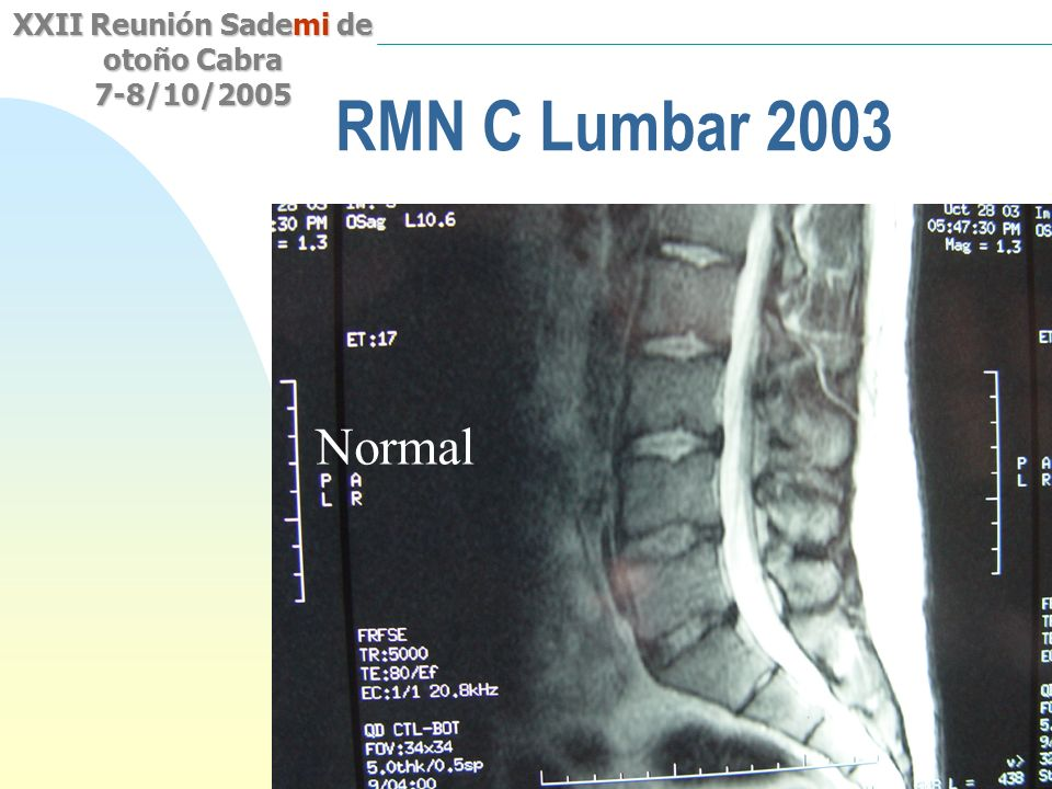RMN C Lumbar 2003 Normal