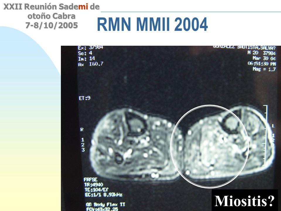 RMN MMII 2004 Miositis