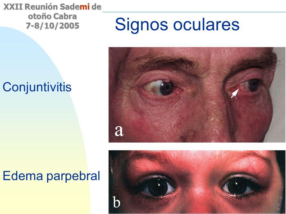 Signos oculares Conjuntivitis Edema parpebral