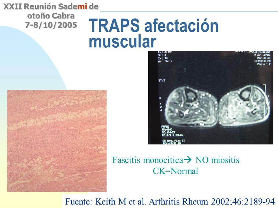 TRAPS afectación muscular
