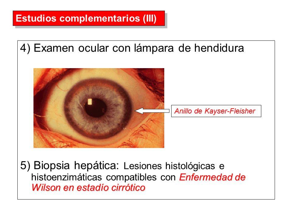 4) Examen ocular con lámpara de hendidura