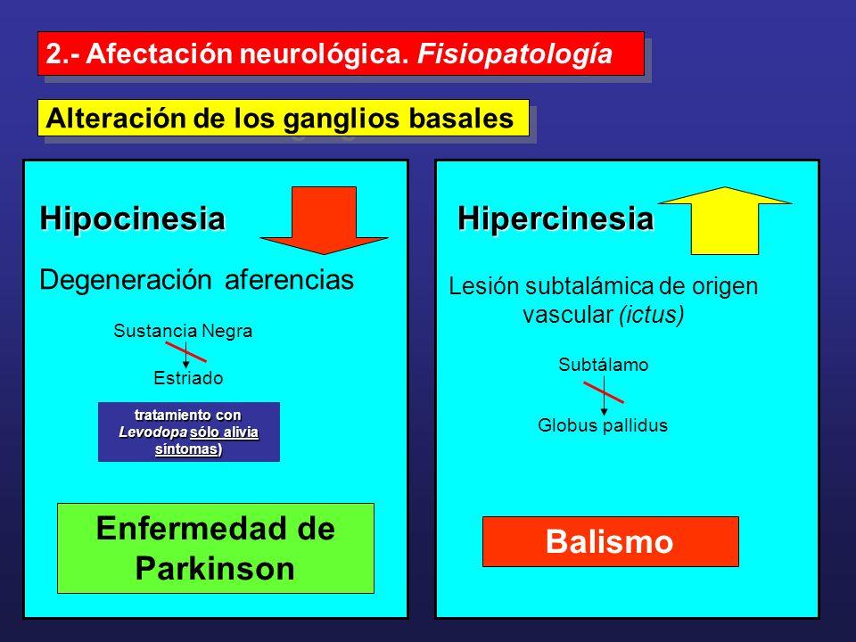 tratamiento con Levodopa sólo alivia síntomas) Enfermedad de Parkinson