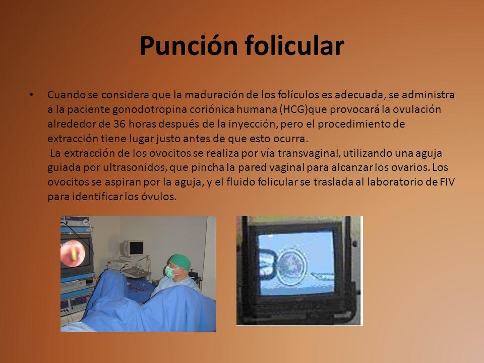 Punción folicular