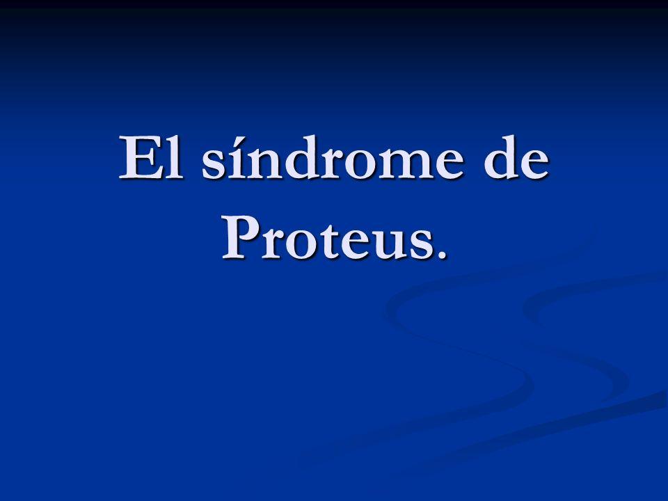 El síndrome de Proteus.