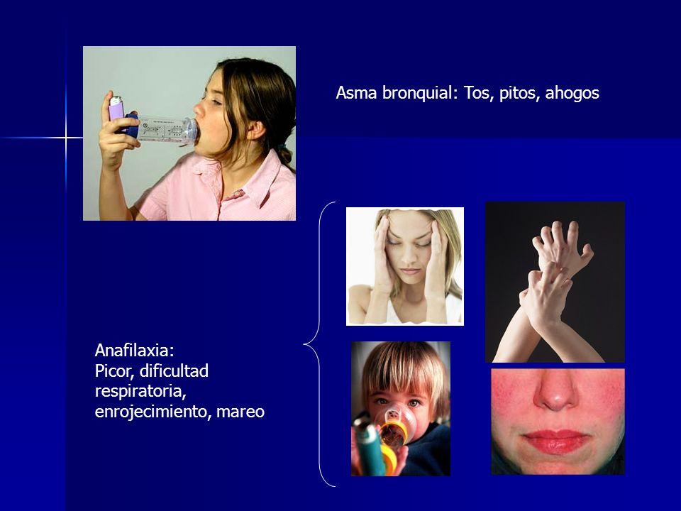 Asma bronquial: Tos, pitos, ahogos