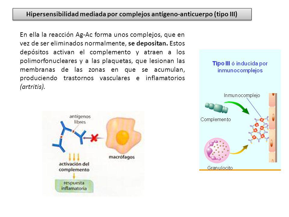 Hipersensibilidad mediada por complejos antígeno-anticuerpo (tipo III)