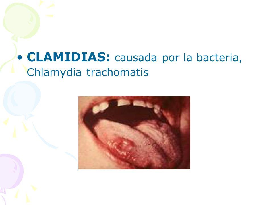 CLAMIDIAS: causada por la bacteria, Chlamydia trachomatis