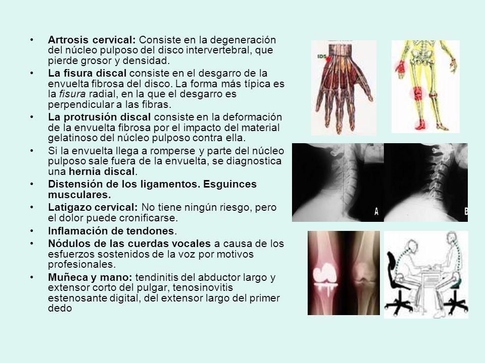 Artrosis cervical: Consiste en la degeneración del núcleo pulposo del disco intervertebral, que pierde grosor y densidad.