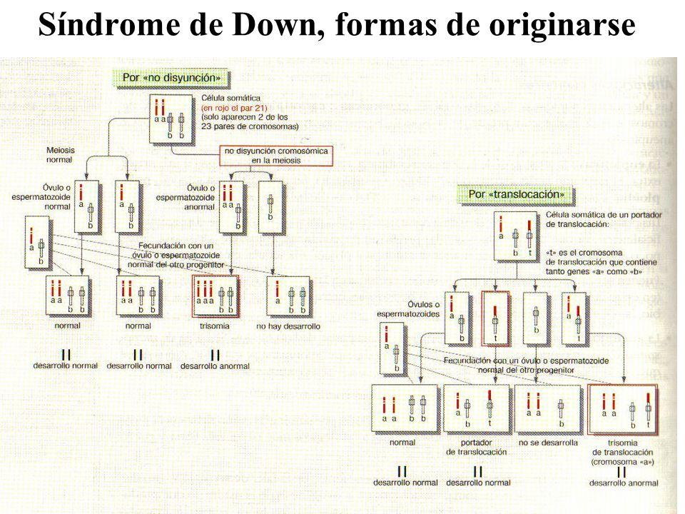 Síndrome de Down, formas de originarse