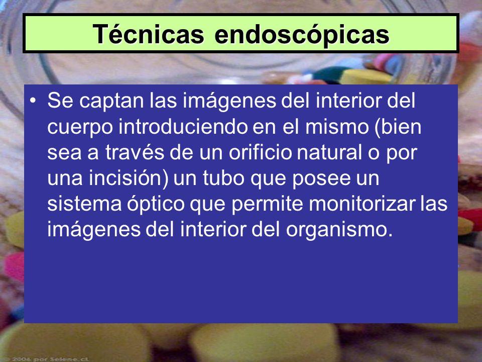 Técnicas endoscópicas