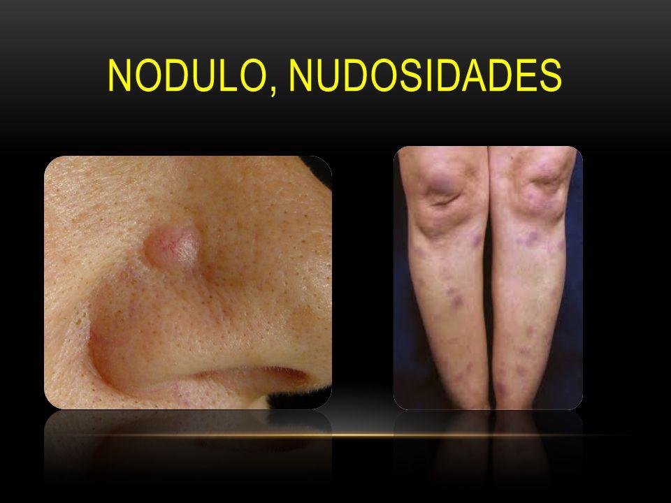 NODULO, NUDOSIDADES