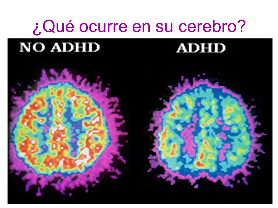 ¿Qué ocurre en su cerebro