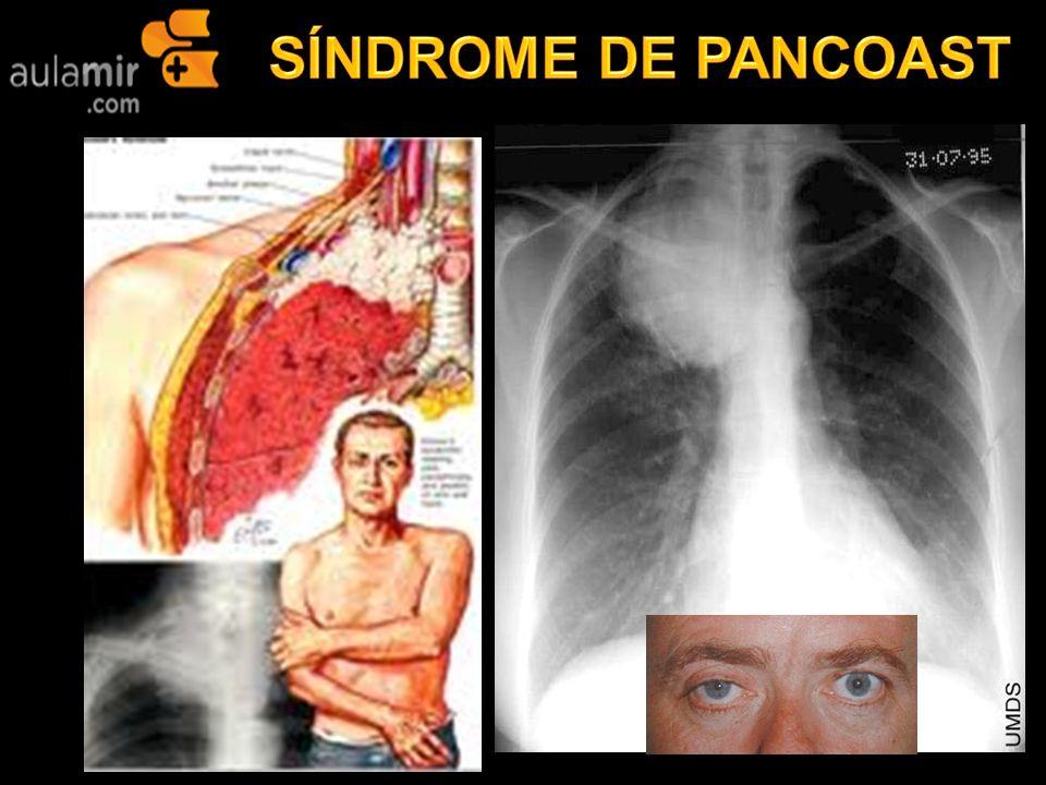 Padece de tuberculosis - 2 7