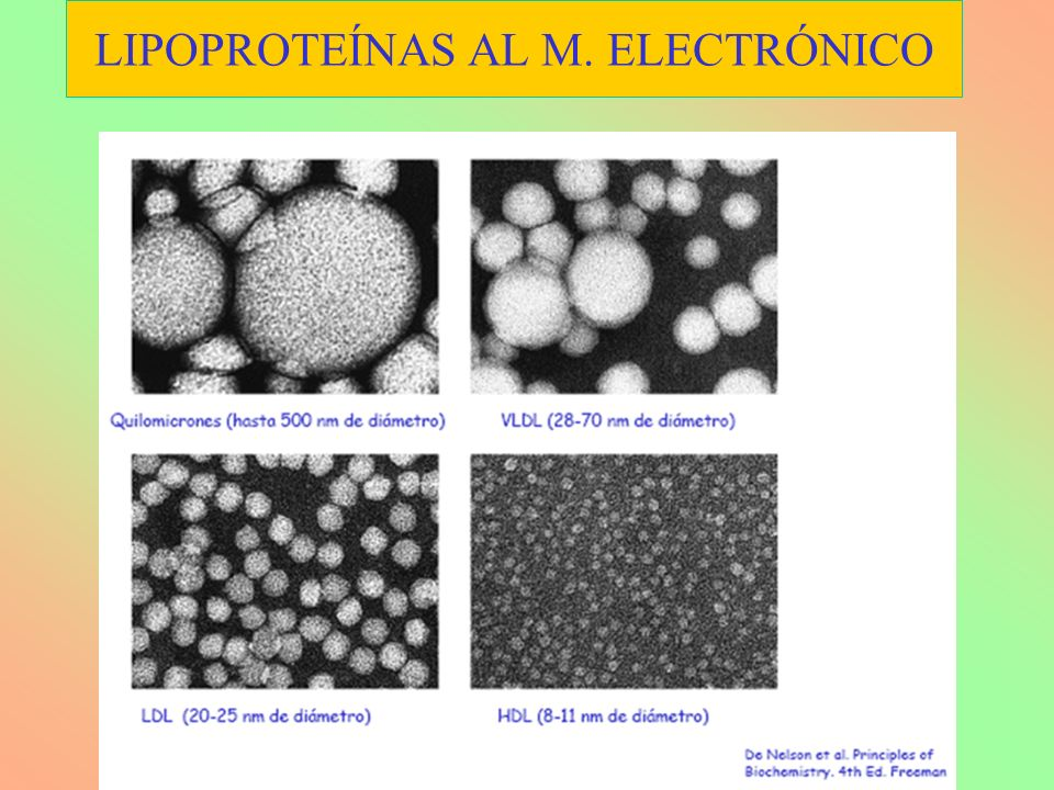 LIPOPROTEÍNAS AL M. ELECTRÓNICO