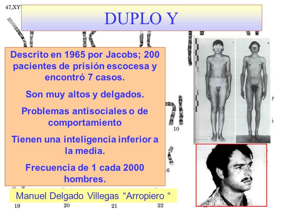 DUPLO Y Descrito en 1965 por Jacobs; 200 pacientes de prisión escocesa y encontró 7 casos. Son muy altos y delgados.