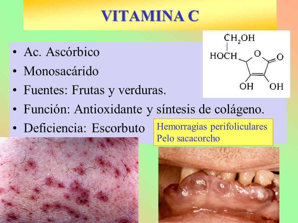 VITAMINA C Ac. Ascórbico Monosacárido Fuentes: Frutas y verduras.