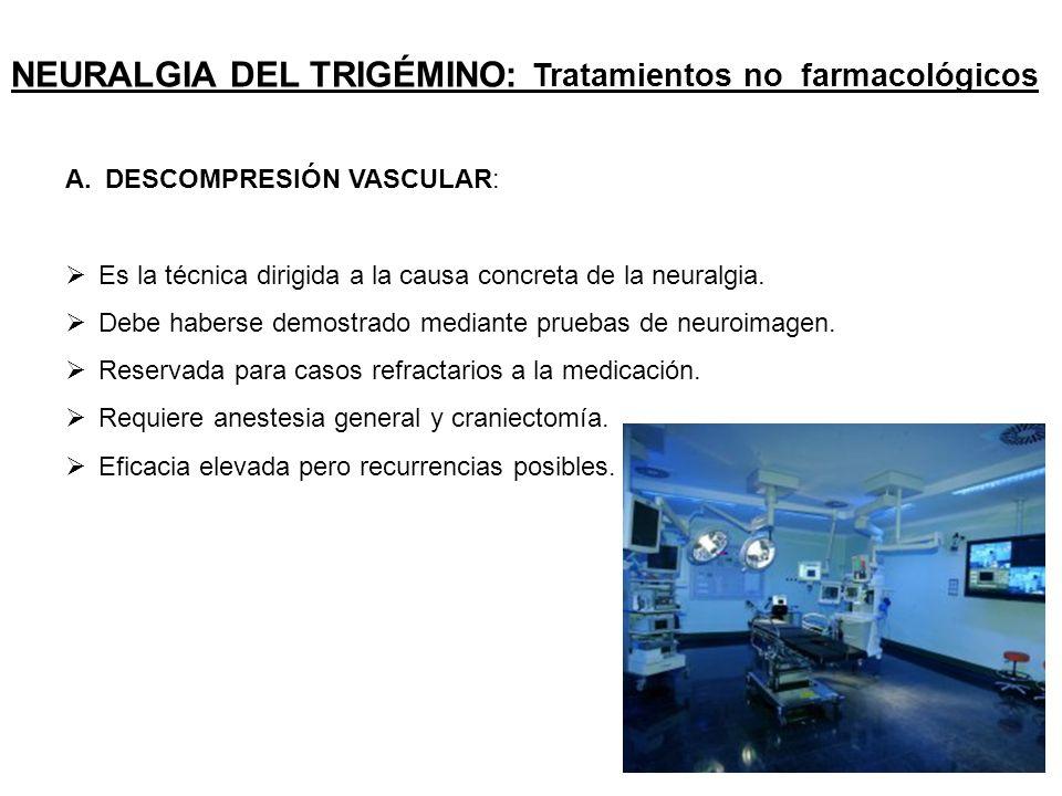 Neuralgia del trigémino, otros dolores faciales y dolor