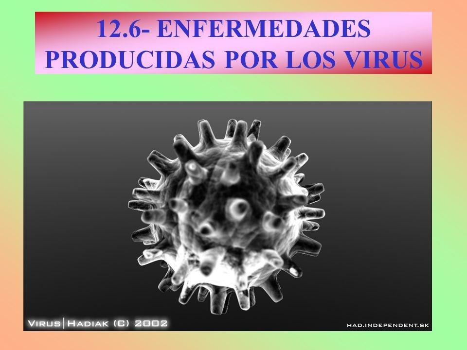 12.6- ENFERMEDADES PRODUCIDAS POR LOS VIRUS