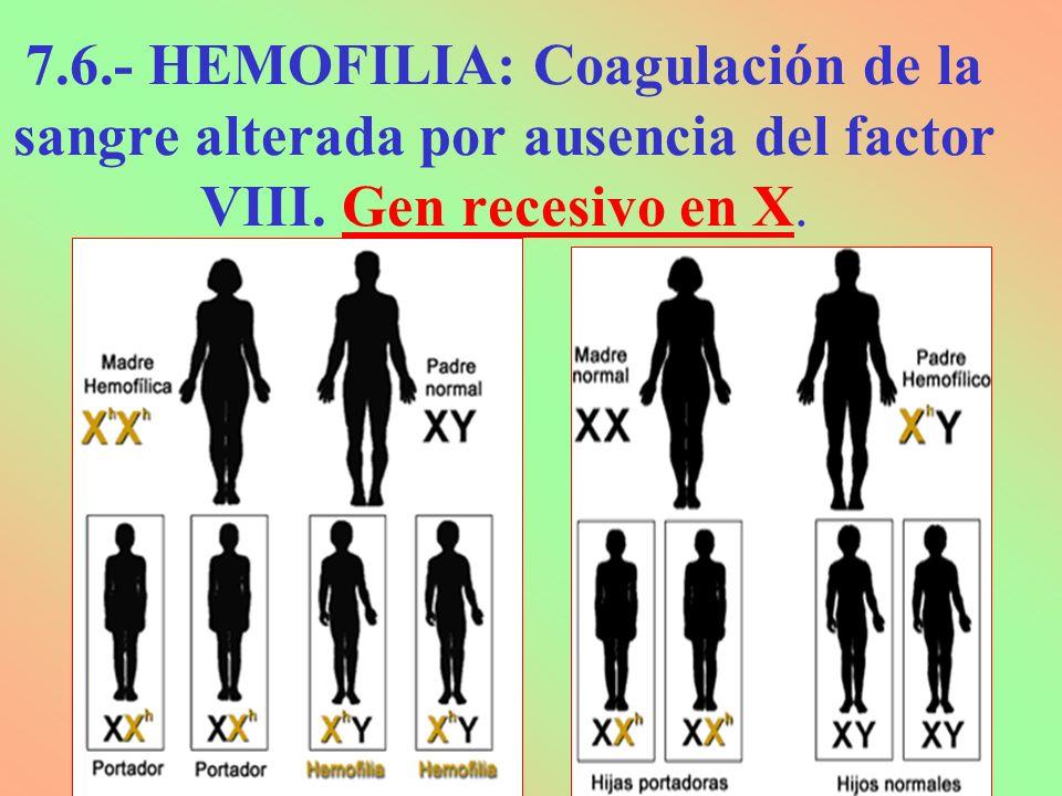 7.6.- HEMOFILIA: Coagulación de la sangre alterada por ausencia del factor VIII. Gen recesivo en X.