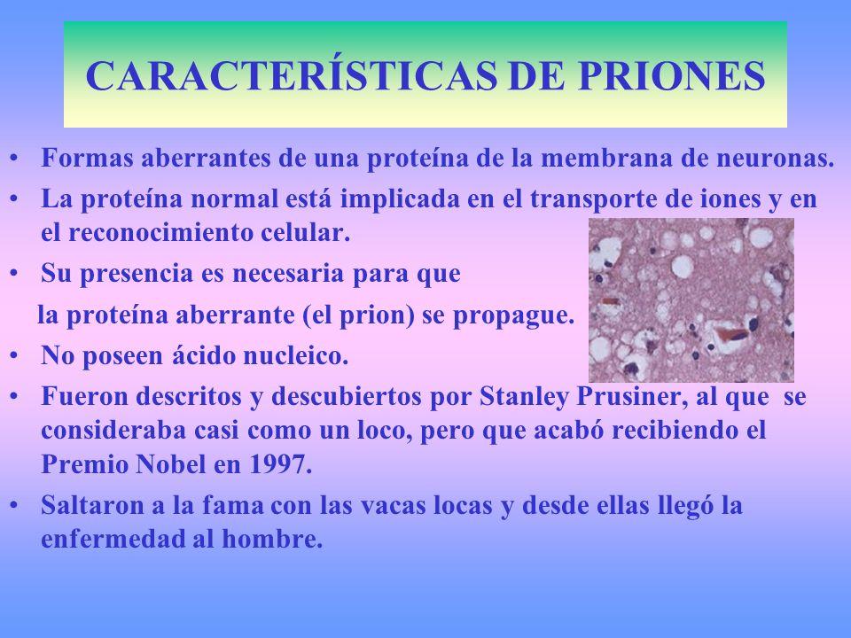 CARACTERÍSTICAS DE PRIONES