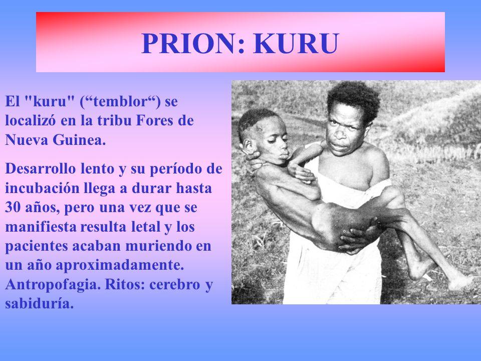 PRION: KURU El kuru ( temblor ) se localizó en la tribu Fores de Nueva Guinea.