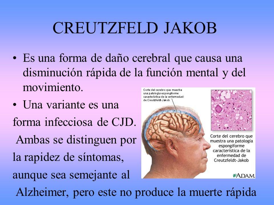 CREUTZFELD JAKOB Es una forma de daño cerebral que causa una disminución rápida de la función mental y del movimiento.