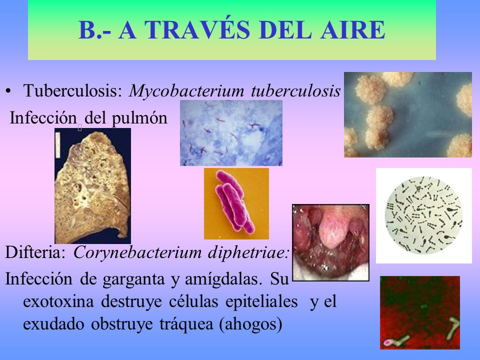 B.- A TRAVÉS DEL AIRE Tuberculosis: Mycobacterium tuberculosis