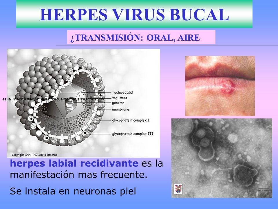 HERPES VIRUS BUCAL ¿TRANSMISIÓN: ORAL, AIRE