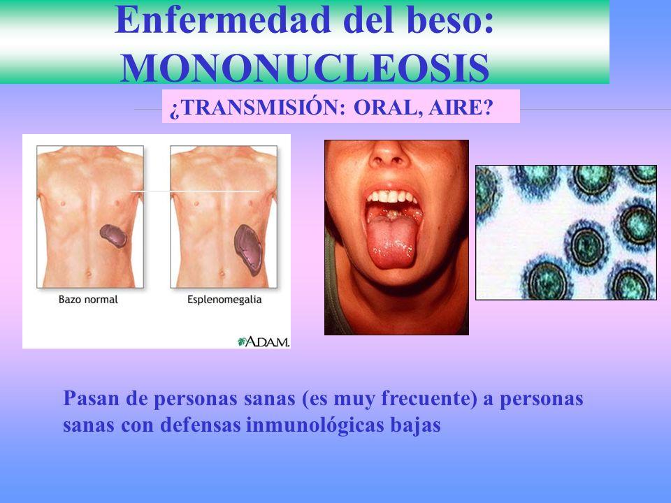 Enfermedad del beso: MONONUCLEOSIS