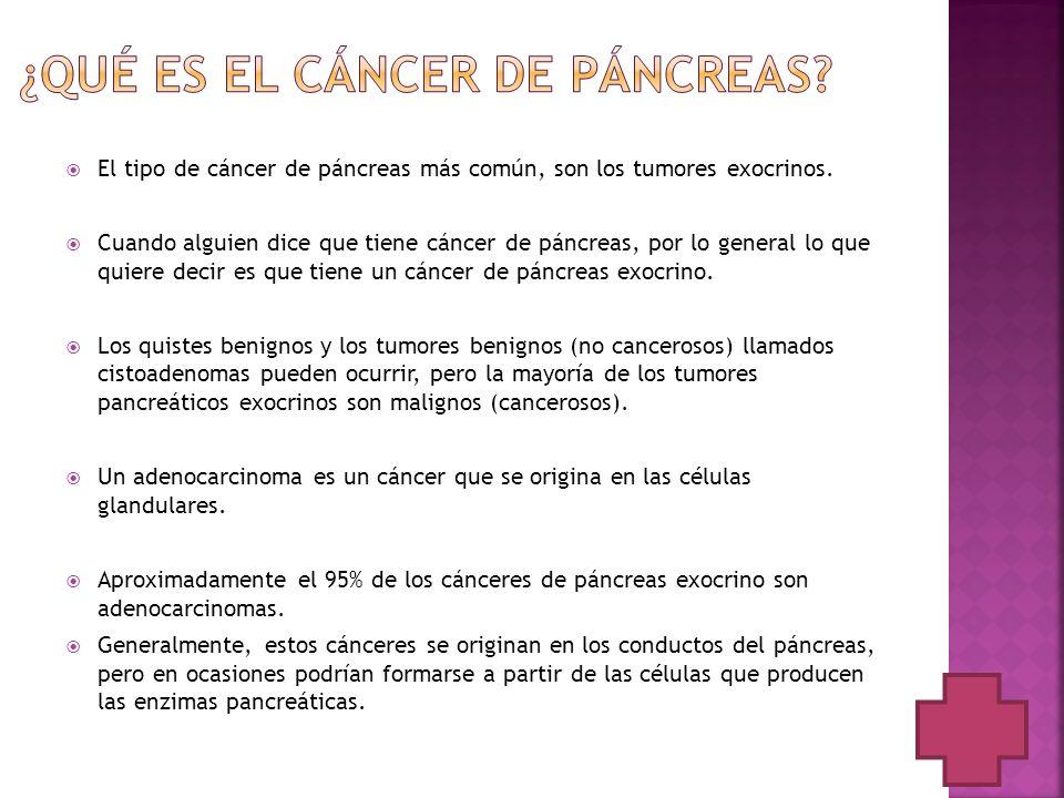 ¿Qué es el cáncer de páncreas