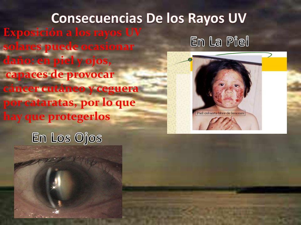 Consecuencias De los Rayos UV