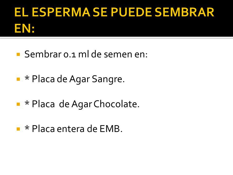 EL ESPERMA SE PUEDE SEMBRAR EN:
