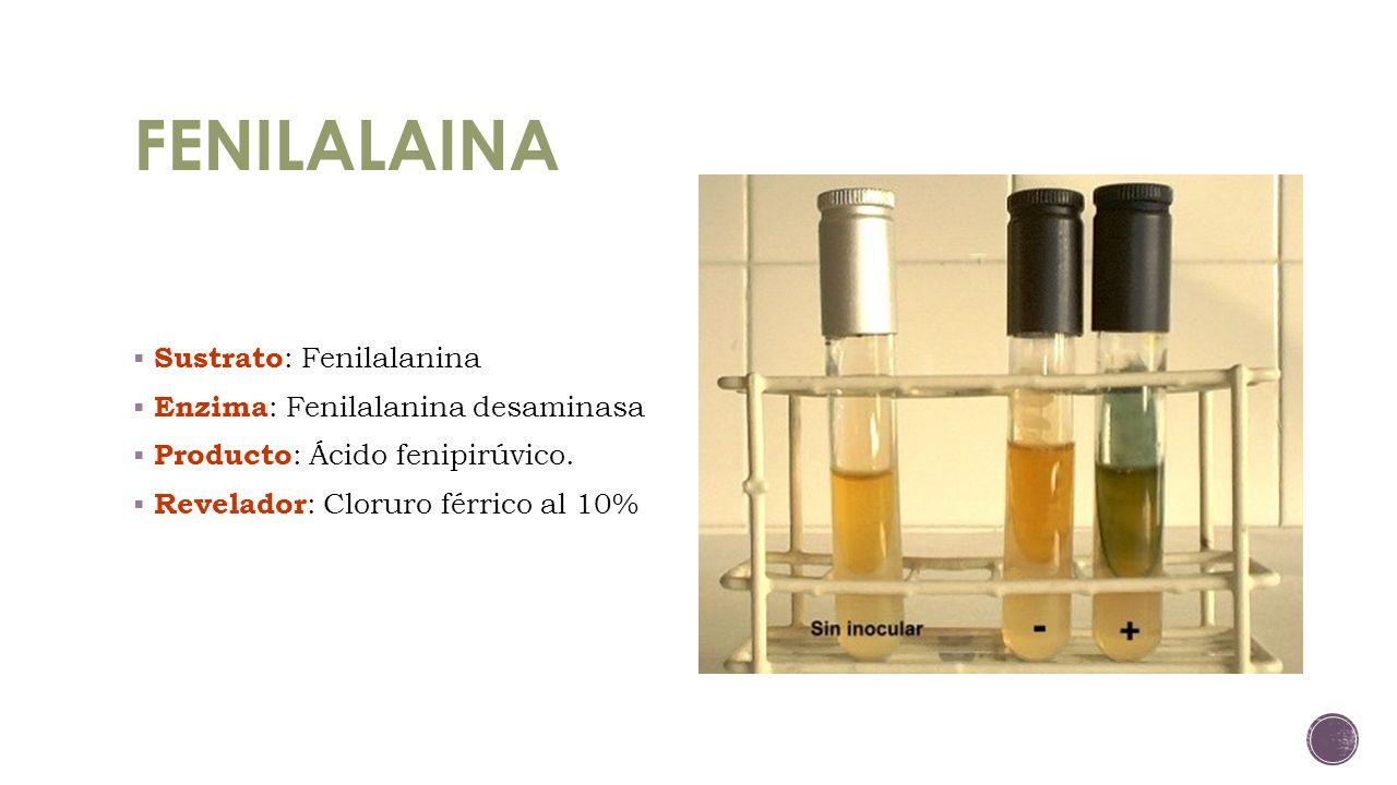 FENILALAINA Sustrato: Fenilalanina Enzima: Fenilalanina desaminasa